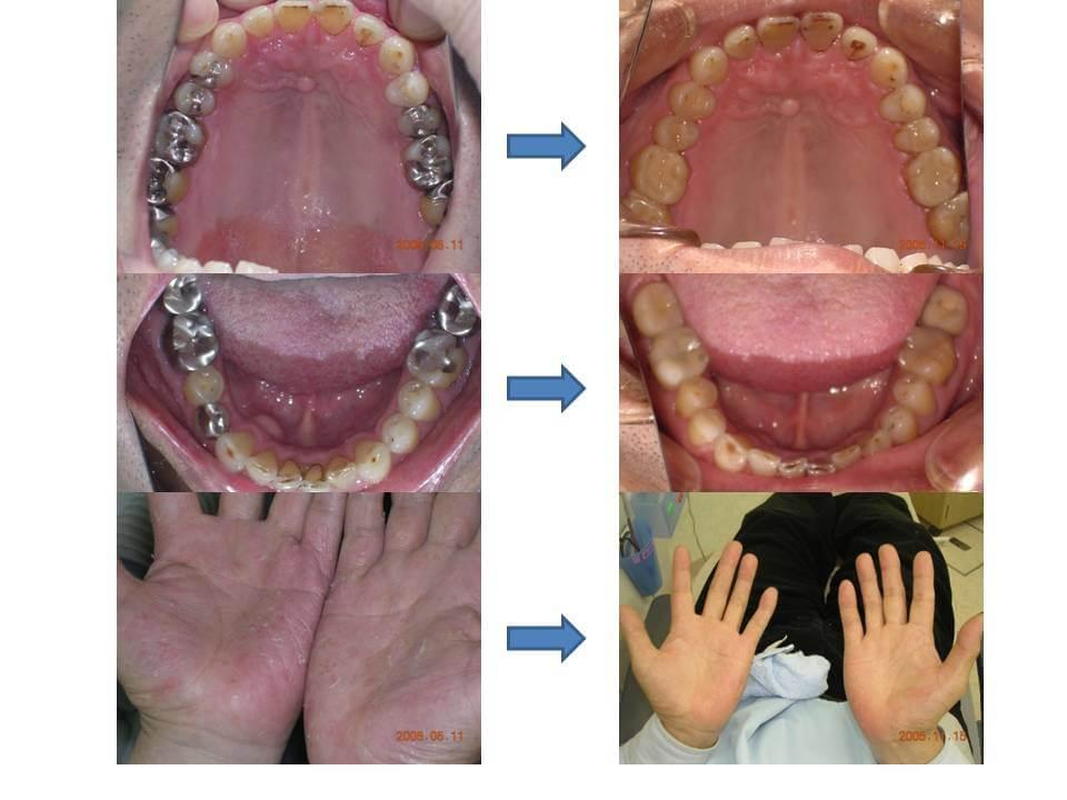 歯科金属アレルギー