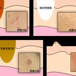 4つのニキビ跡の種類